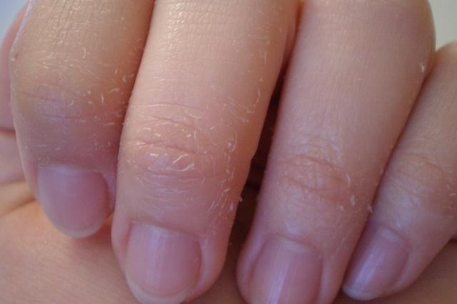 Cơ thể thiếu vitamin da tay thường sẽ dễ bong tróc và gây cảm giác ngứa